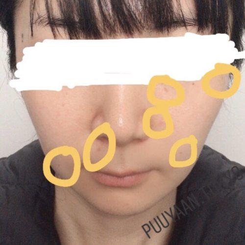 ほくろ除去手術後4週間の顔