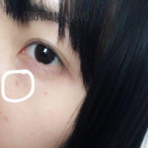 ほくろ除去 経過 大きめ 3mm 3週間後 顔