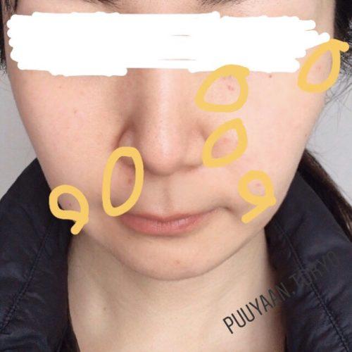 ほくろ除去手術後3週間の顔