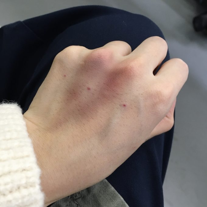 チェヒョク韓医院 鼻鍼 美容鍼 瀉血 韓国美活 経過 ソウル 足 手 痕 回復