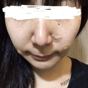 韓国美活 シミ取り ほくろ除去 経過 シロアムクリニック チェヒョク韓医院 当日 除去後
