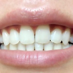 使用前 松風ハイライト シェードアップ ホームホワイトニング 歯科専売 効果
