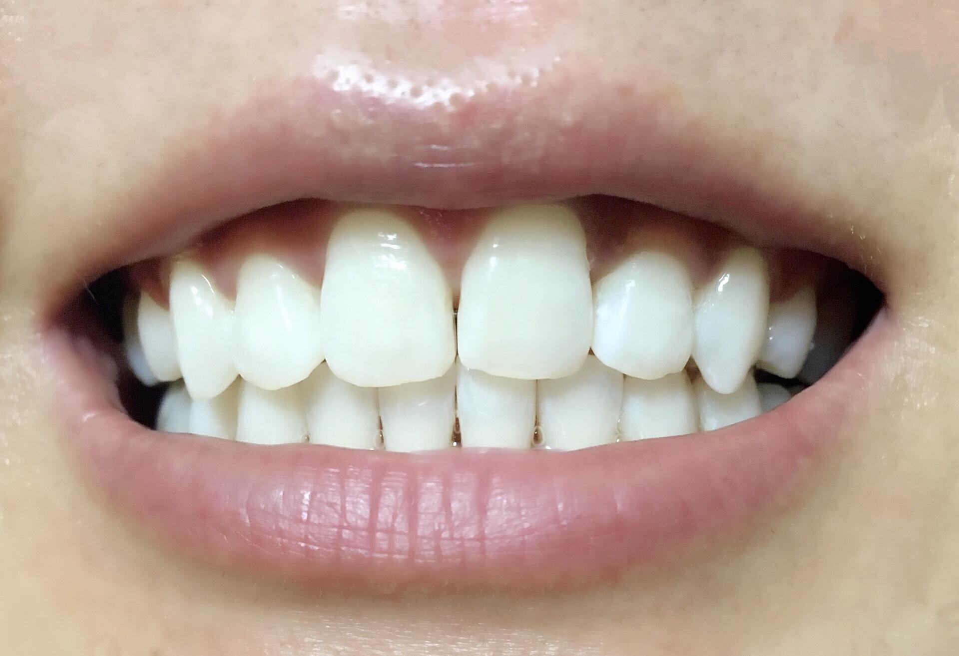 松風ハイライトシェードアップを1回使用した歯