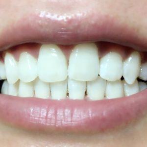 2回目 松風ハイライト シェードアップ ホームホワイトニング 歯科専売 効果