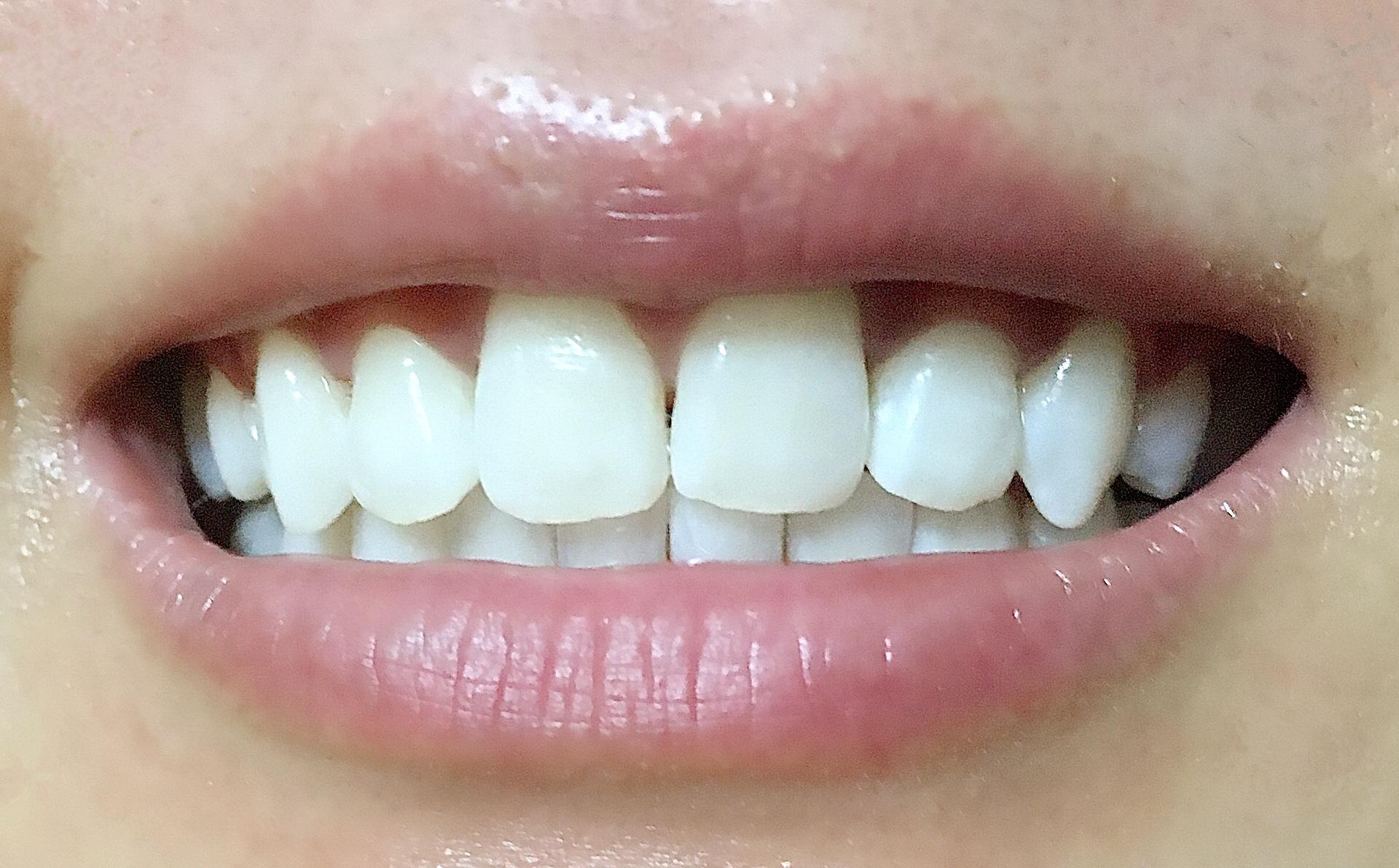 松風ハイライトシェードアップを3回使用した歯