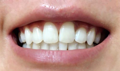 4回目 松風ハイライト シェードアップ ホームホワイトニング 歯科専売 効果