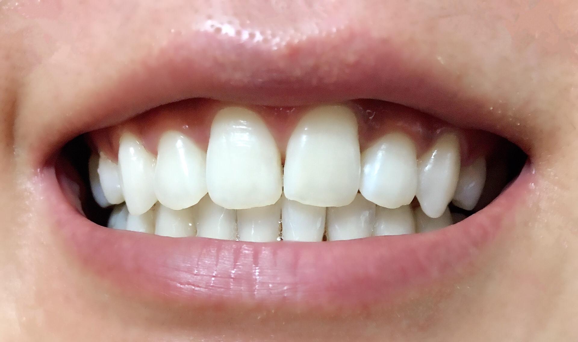 松風ハイライトシェードアップ4回使用した歯
