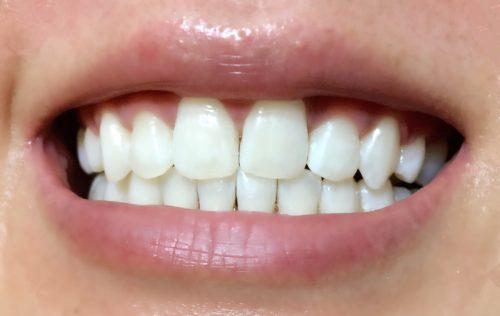 5回目 松風ハイライト シェードアップ ホームホワイトニング 歯科専売 効果
