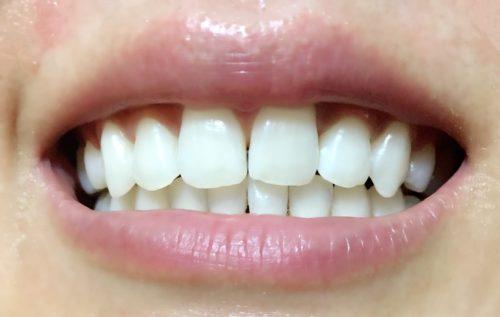 6回目 松風ハイライト シェードアップ ホームホワイトニング 歯科専売 効果