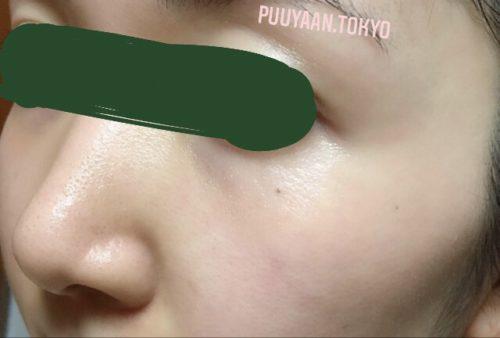 ゼオスキンセラピューティック使用後の肌