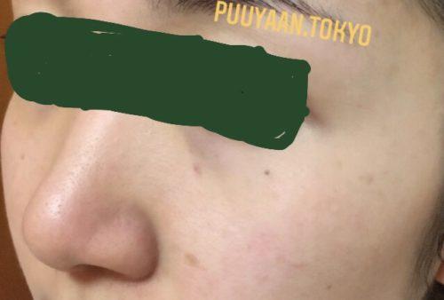 ゼオスキンセラピューティック使用前の肌